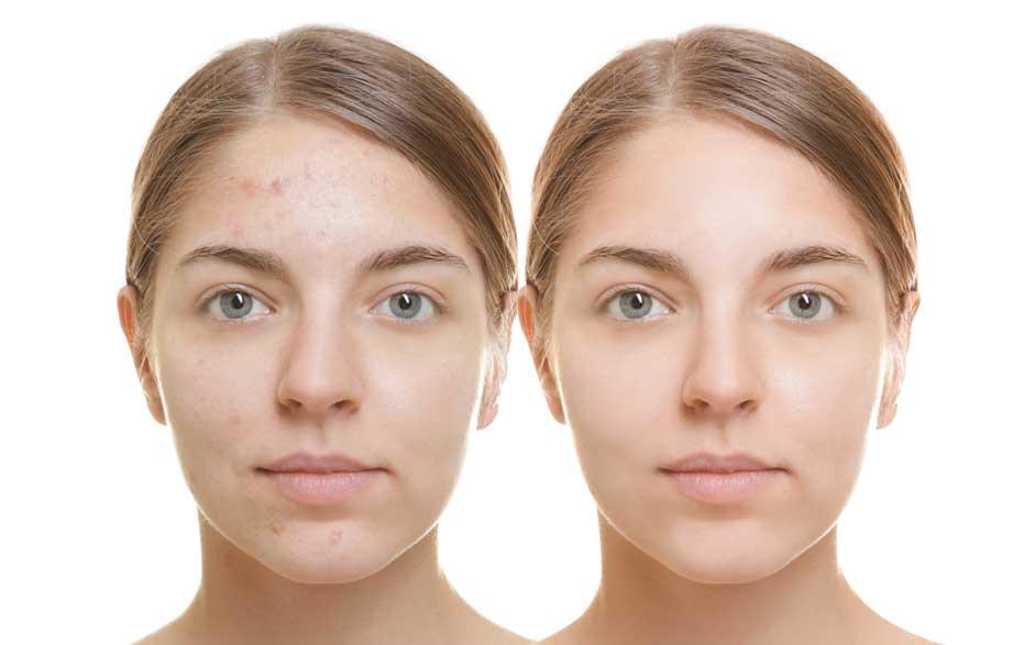 до и после лица